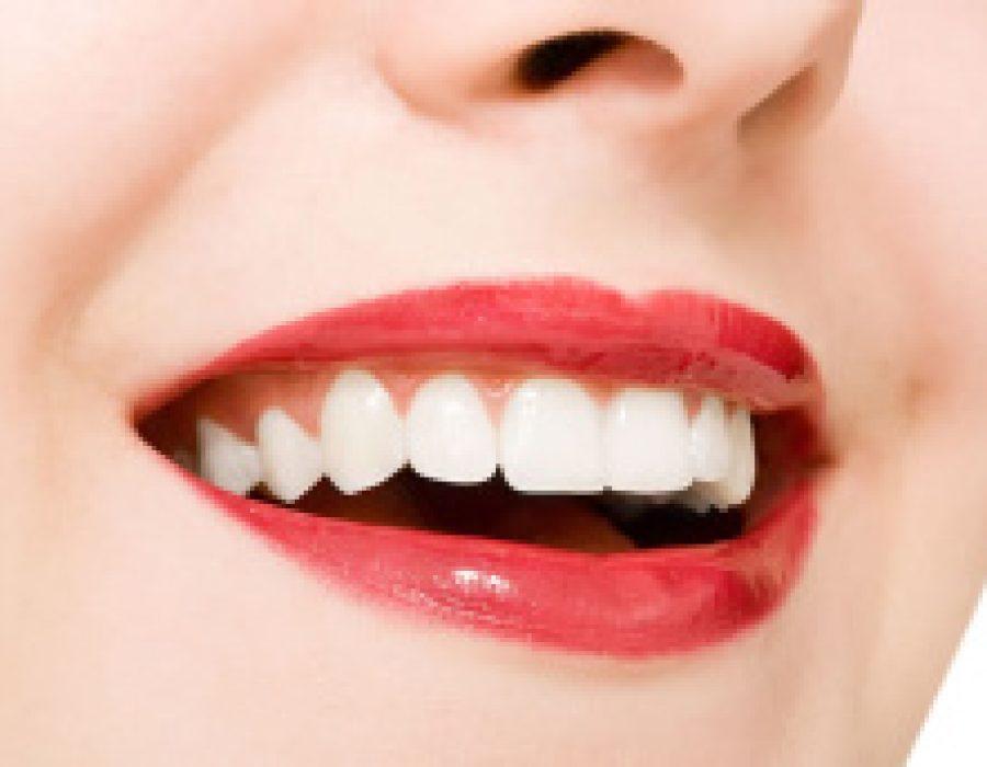 Bleaching: Aufhellen schadet Zähnen