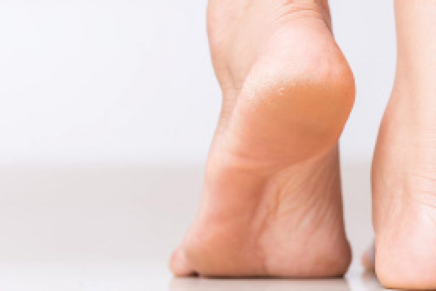 Füße: Hornhaut mit Gefühl