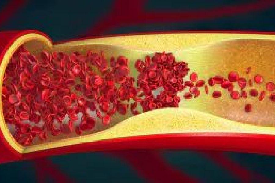 Gefäßverkalkung: Arteriosklerose kann sich wieder zurückbilden